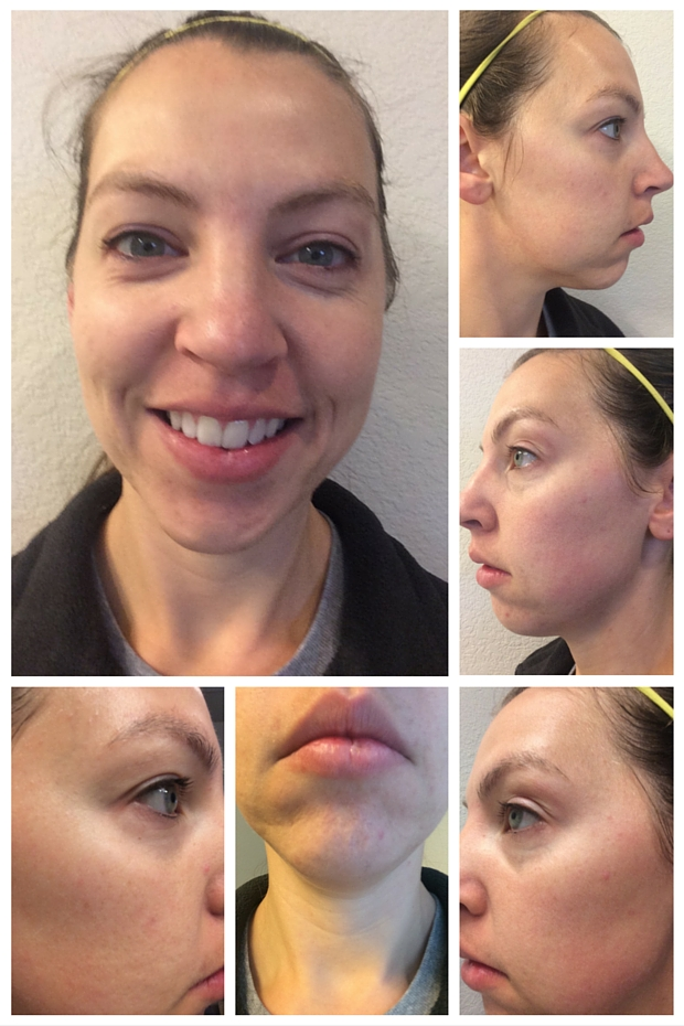 Rodan and Fields Before Photos